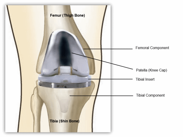 knee replacement, implant
